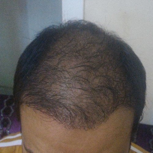 تجارب زراعة الشعر مركز اثيكانا